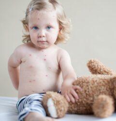 vacina catapora
